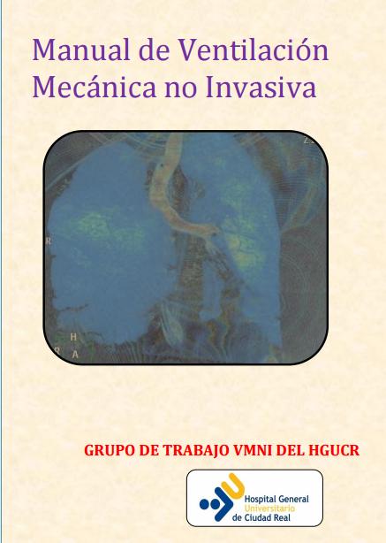 VMNICiudadReal